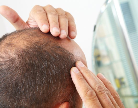 Weston Homeowners Prevent Hair from Growing Too Thin