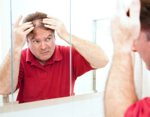 How to Get Back a Thick Head of Hair